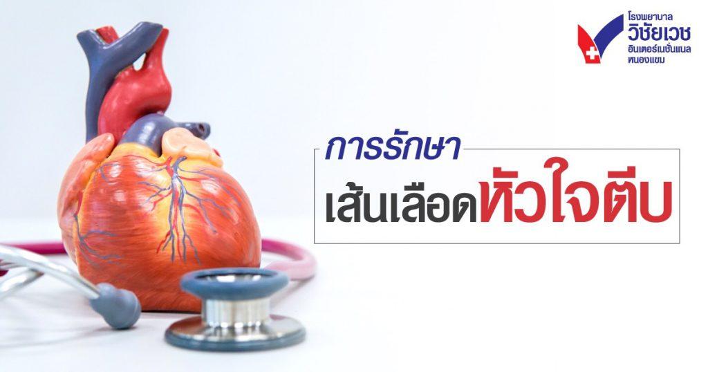 การรักษาโรคหลอดเลือดหัวใจตีบ