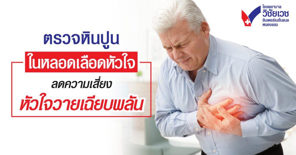 ตรวจหินปูนในหลอดเลือดหัวใจ  ลดความเสี่ยงหัวใจวายเฉียบพลัน